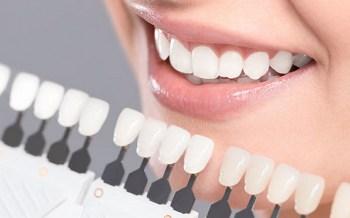 dentist brandon ms Composite dental fillings header image