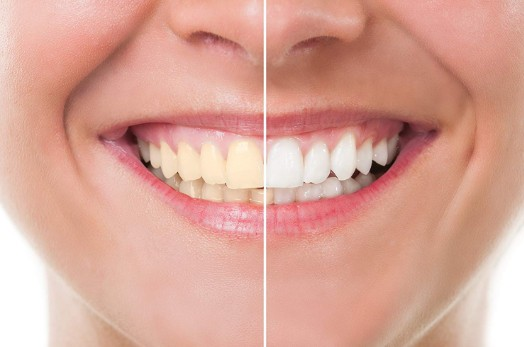 dentist brandon ms Cosmetic dentistry header image woman smiling