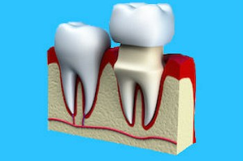 dentist brandon ms dental Crowns header image