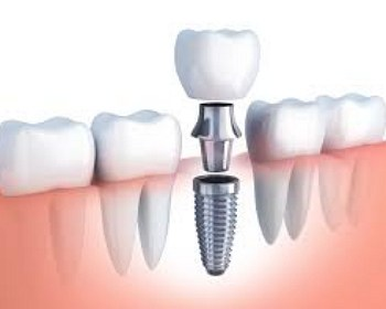 brandon ms dentist dental Implants header image