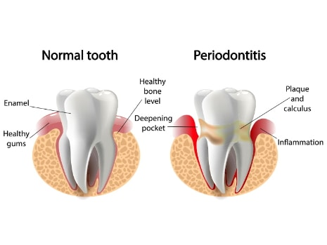 brandon ms dentist periodontal treatments header image