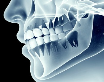 brandon ms dentist Dental X-Rays header image